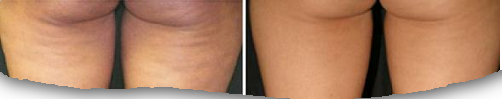 cellulite-formation